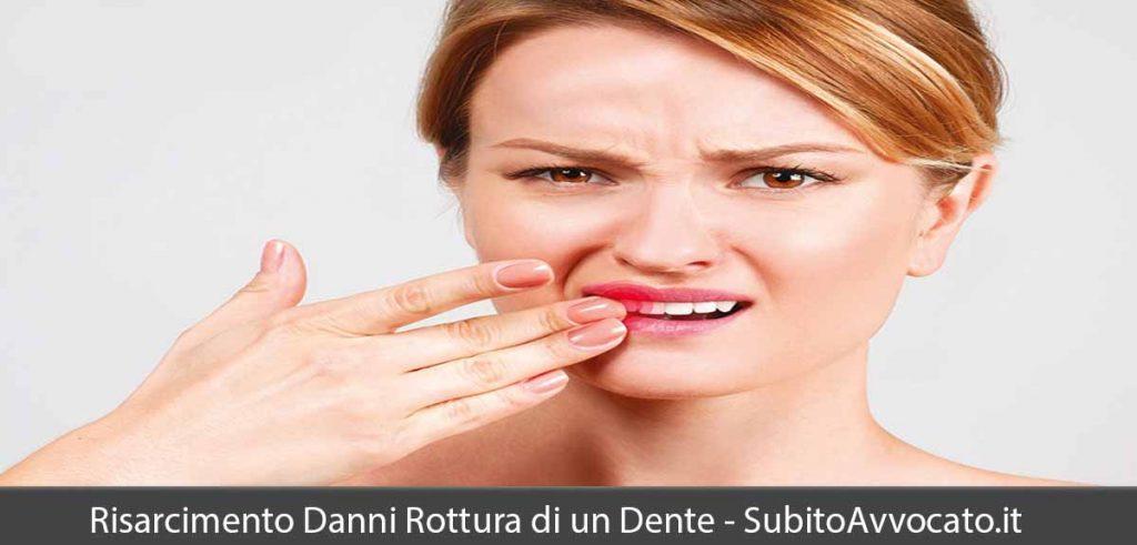 risarcimento danni rottura dente